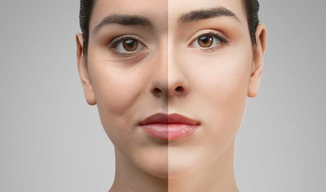 顔のたるみ改善に即効性があるリフトアップ化粧 …